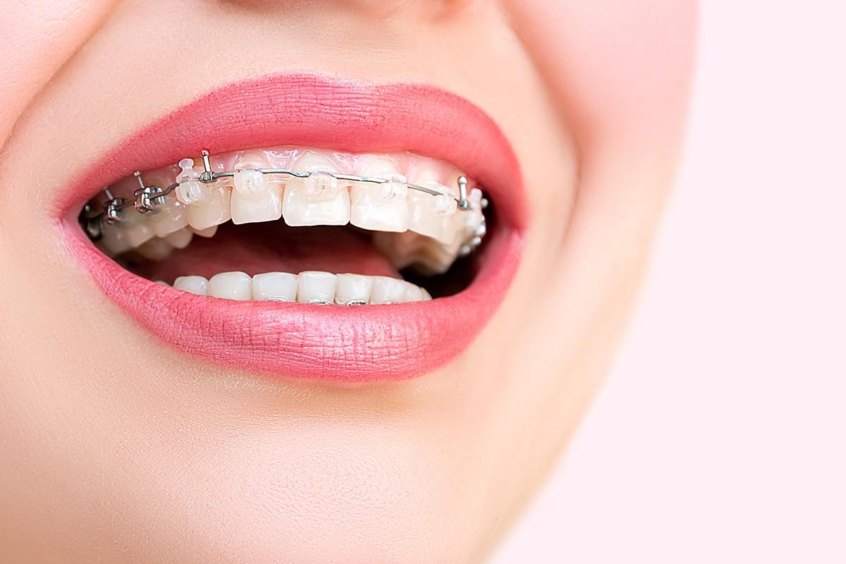 L Orthodontie Pour Adultes Ca Vous Tente Investissements
